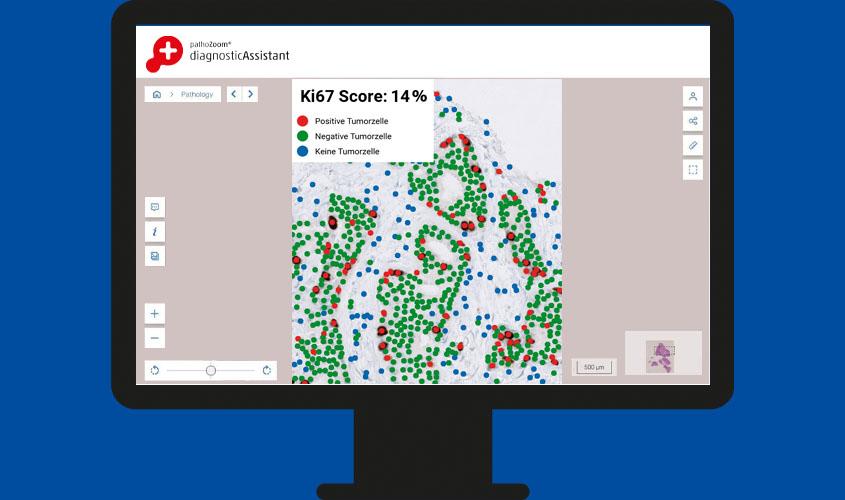 Bildschirm, der die Anwendung des PathoZoom Diagnostic Assistant zeigt, der automatisch Tumorzellen erkennt und auswertet