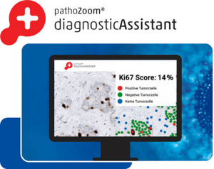 Product image diagnosis on the computer using the artificial intelligence of the PathoZoom Diagnostic Assistant