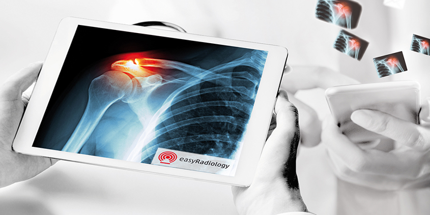 Radiologist uses the smart referral portal EasyRadiology per Tablet