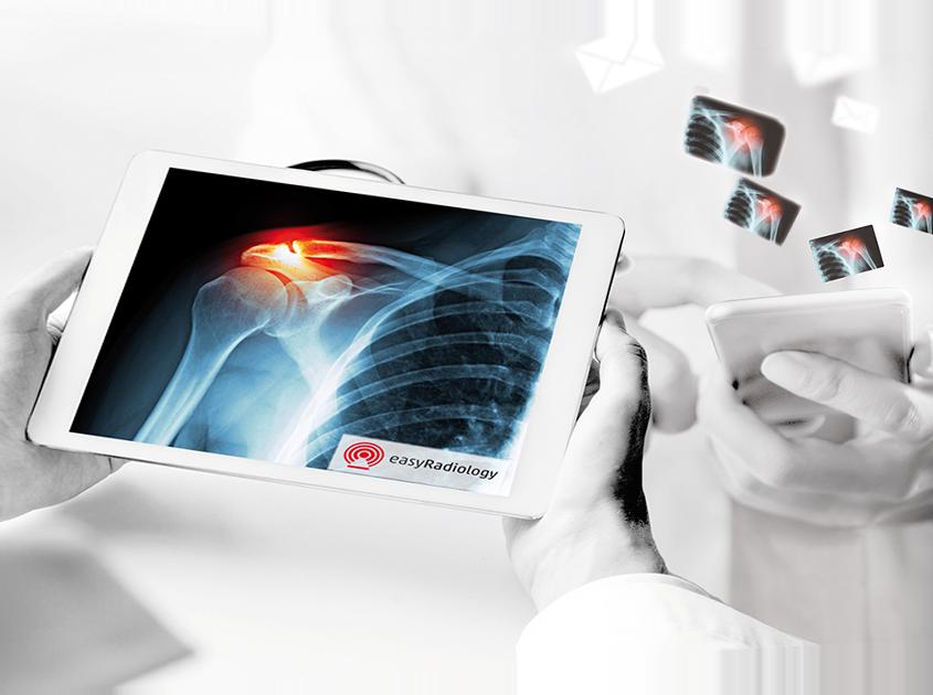Radiologist uses the smart referral portal EasyRadiology per Tablet