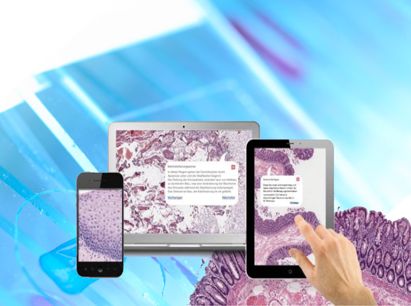 Digital pathology a la PathoZoom when applied on Smartphone, Tablet and PC