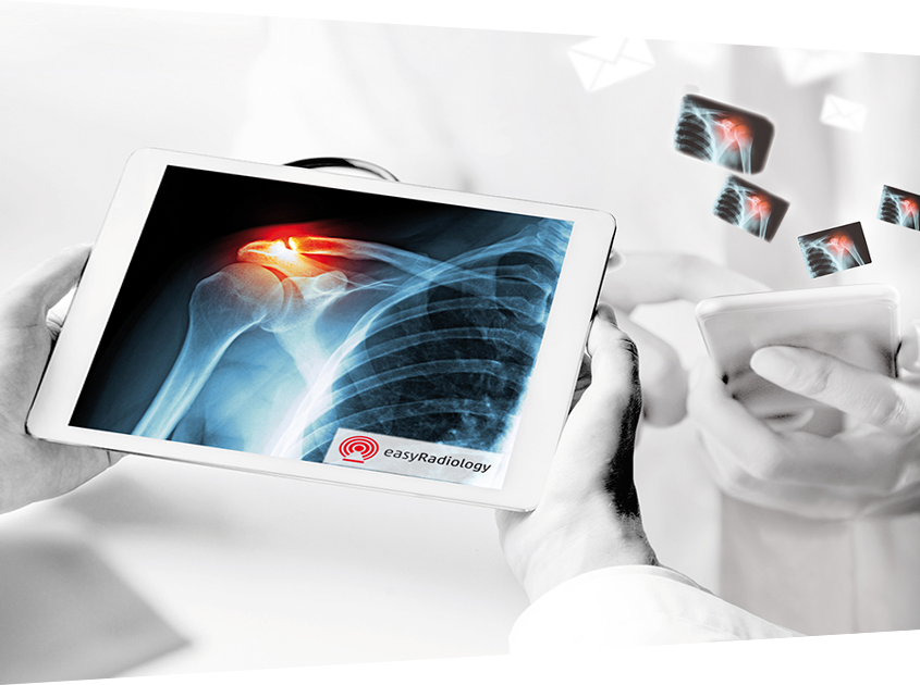 View of an EasyRadiology exam on a tablet