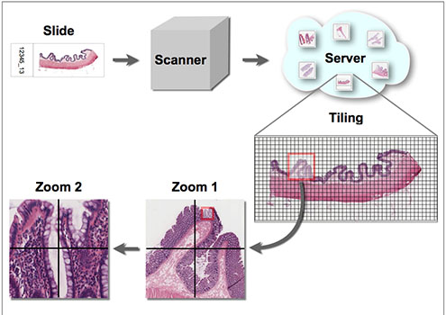 Process of digitizing in Virtual Microscopy